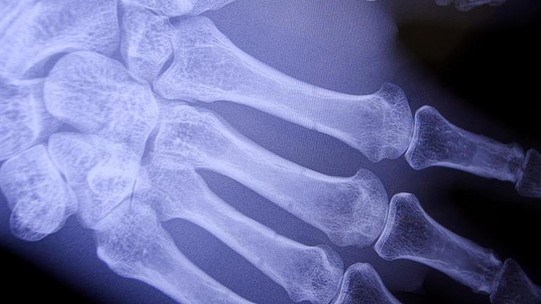 Nahaufnahme eines Röntgenbildes eine rechten Hand. Die Fingerknochen sind erkennbar.